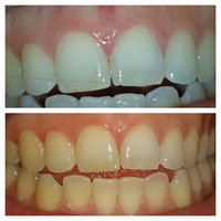 Crest 3D White Whitestrips 5 Minute Touch-Ups with Stain Shield uploaded by marina v.