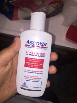 Photo of Asepxia Astringent Lotion - 4 Oz uploaded by Yari D.