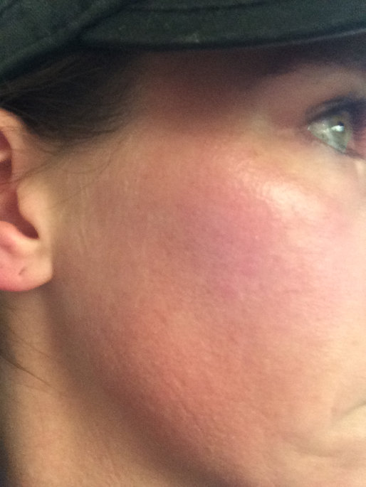Photo of Clear Proof® Blemish Control Toner uploaded by Dana M.