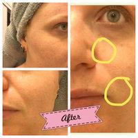 Paula's Choice CLINICAL 1% Retinol Treatment, 1 fl oz uploaded by Sara E.
