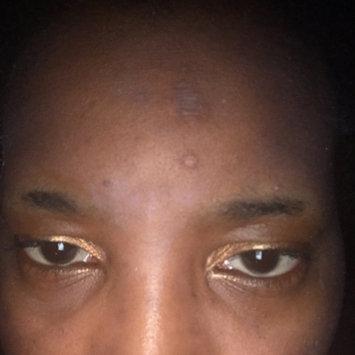 Photo of Nadinola Skin Discoloration Fade Cream uploaded by Alicia T.