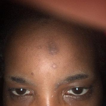 Nadinola Skin Discoloration Fade Cream uploaded by Alicia T.
