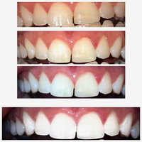Crest 3D White Luxe Supreme Flexfit Whitestrips Teeth Whitening Kit uploaded by Brianna t.