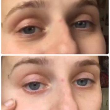 Photo of Biossance Squalane + Peptide Eye Gel uploaded by Katy M.