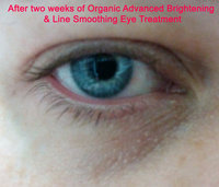 Sweetsation Therapy I*Light Organic Advanced Brightening & Line Smoothing Eye Treatment, 0.5oz uploaded by Lorna W.