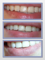 Luster NOW! Instant Whitening Toothpaste uploaded by Anna W.