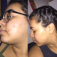 Kiehls Clearly Corrective Dark Spot Solution uploaded by Astry C.