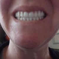 Crest 3D White Luxe Whitestrips Glamorous White Teeth Whitening Kit uploaded by Alicia D.