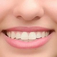 ACT Restoring Mint Burst Anticavity Fluoride Mouthwash, 18 oz uploaded by Dianne P.