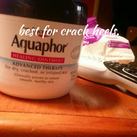 Aquaphor Healing Skin Ointment uploaded by Mary H.