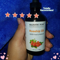 Majestic Pure Rosehip Oil 100% Pure, Certified Organic Cold Pressed Premium Rose Hip Seed Oil for Face, Skin, Nails & Hair, 4 fl. oz. uploaded by Lidia R.