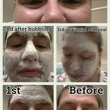 Elizavecca Milky Piggy Carbonated Bubble Clay Mask uploaded by Cheryl W.