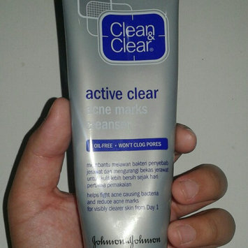 Photo of Clean & Clear® Advantage® Mark Treatment uploaded by imanda h.