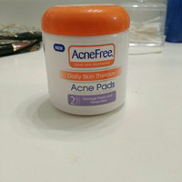 AcneFree Daily Skin Therapy Acne Pads uploaded by Shelby G.