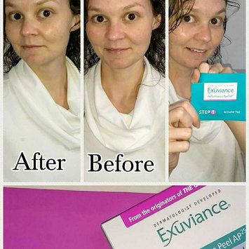 Exuviance Performance Peel AP25, 13 Count uploaded by Robyn D.