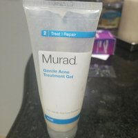 Murad Intensive Resurfacing Peel uploaded by tabatha b.
