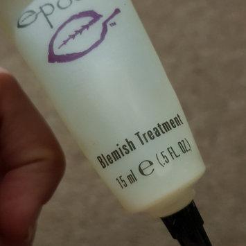 Photo of Nu Skin NuSkin Epoch Blemish Treatment - Acne Medication - 15 ml (0.5 Fl. Oz.) uploaded by Lauren S.
