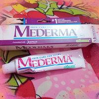 Mederma Advanced Scar Gel uploaded by Nazra N.