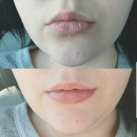 Blistex SPF 15 Medicated Mint Lip Balm uploaded by Emily D.