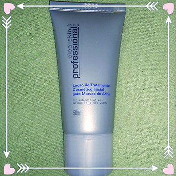 Photo of Avon Clearskin Professional Acne Treatment System uploaded by Eryca L.