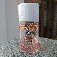 Bio-Oil Specialist Moisturizer uploaded by Tatiana M.