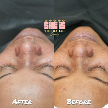 Photo of Peter Thomas Roth FIRMx™ Peeling Gel uploaded by She I.