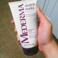 Mederma Stretch Marks Therapy uploaded by Crowned G.