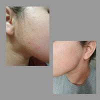 Neutrogena® Oil-Free Acne Wash Pink Grapefruit Foaming Scrub uploaded by Perla L.