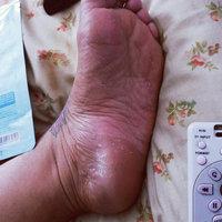 Tony Moly Foot Peeling Shoes uploaded by Frances F.