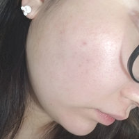Juice Beauty® BLEMISH CLEARING™ Serum uploaded by Amy T.