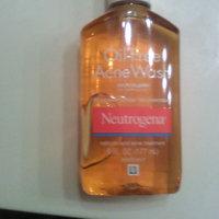 Neutrogena® Oil-Free Acne Wash uploaded by Vanessa G.