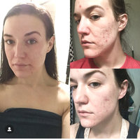 PanOxyl Acne Foaming Wash Maximum Strength uploaded by Gabrielle M.