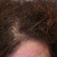Briogeo Scalp Revival Charcoal + Coconut Oil Micro-Exfoliating Shampoo uploaded by Idalia A.