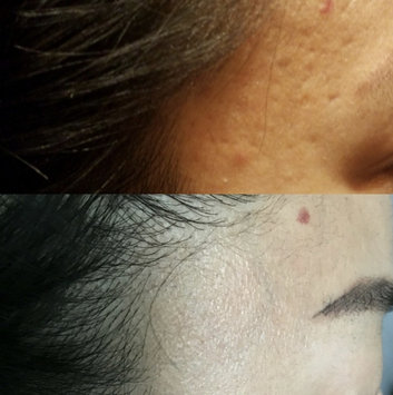 Photo of Hanacure All-In-One Facial uploaded by Jenny Suyeon K.