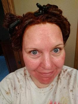 Photo of The Ordinary AHA + BHA 2% Peeling Solution uploaded by Kris J.