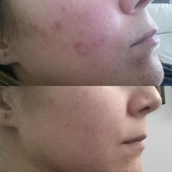 Photo of The Ordinary AHA + BHA 2% Peeling Solution uploaded by Olivia F.