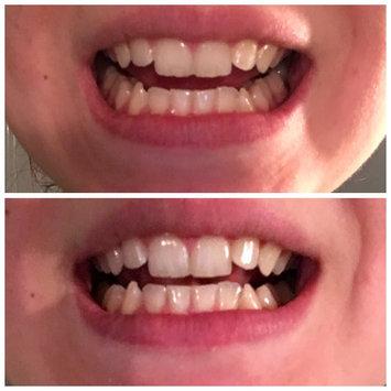 AP-24 Whitening Fluoride Toothpaste uploaded by member-69e823161