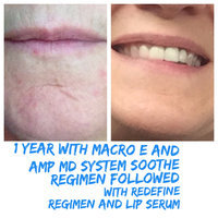 "Rodan and Fields ""Soothe"" Gentle Cream Wash uploaded by Emily M."
