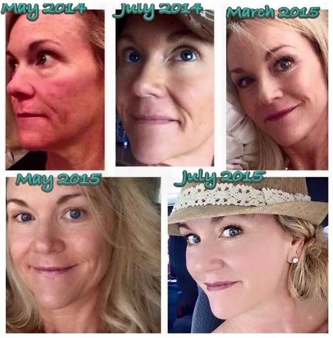 """Rodan and Fields """"Soothe"""" Gentle Cream Wash uploaded by Emily M."""