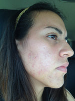Clean & Clear Advantage Acne Spot Treatment uploaded by D004874 Rosaury D.
