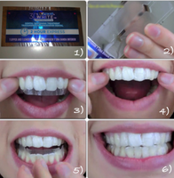 Whitestrip 3D White Luxe Crest 3D White Luxe Whitestrips Supreme FlexFit - Teeth Whitening Kit 14 Treatments uploaded by 🎀 N.