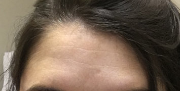 Photo of BOTOX® Cosmetic uploaded by Hadyn C.