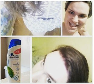 Head & Shoulders Green Apple 2-in-1 Dandruff Shampoo & Conditioner uploaded by Carly R.
