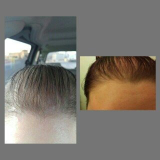 Viviscal Hair Growth Program uploaded by Ashleigh S.