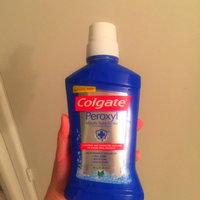 Colgate Peroxyl Mouth Sore Rinse, Mild Mint, 16.9 oz uploaded by Jennifer R.