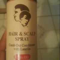 Sta-Sof-Fro Hair & Scalp Spray uploaded by Keiondra J.