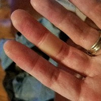 Band-Aid Advanced Healing Blister for Fingers & Toes uploaded by Sara B.