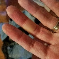 Photo of Band-Aid Advanced Healing Blister for Fingers & Toes uploaded by Sara B.