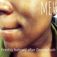 DERMAFLASH Facial Exfoliating Device uploaded by the a.
