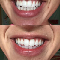 One-Hour Intense-Tech Whitening System by Equate uploaded by Christine R.